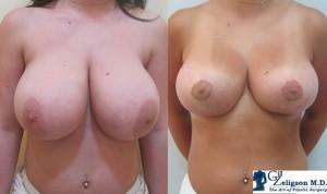 Пластика груди: увеличение груди, уменьшение груди, поднятие груди, ассиметрия груди
