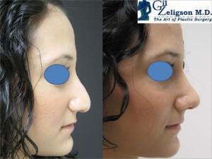 пластические операции в Израиле. Фотографии до и после. Пластика носа